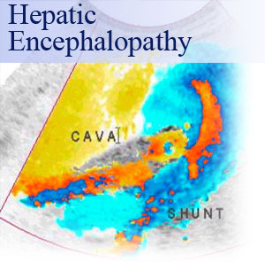 Hepatic encephalopathy: a common complication of liver diseases