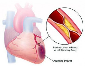 Atherosclerosis complications